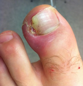 ingrown toenail bad cutting